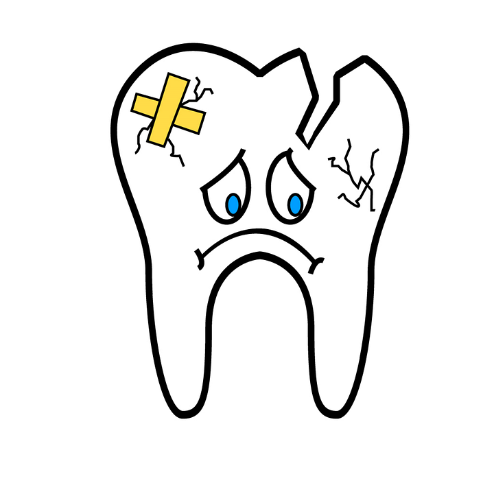 broken-tooth-2351797_960_720